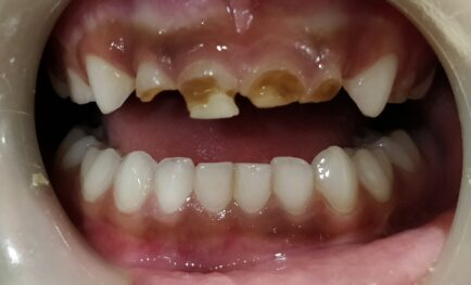 Early Childhood Caries (ECC) – What is it and how to prevent it?