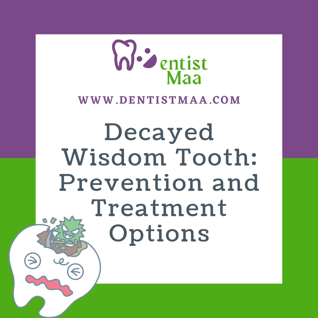 Decayed Wisdom Tooth: Prevention and Treatment Options
